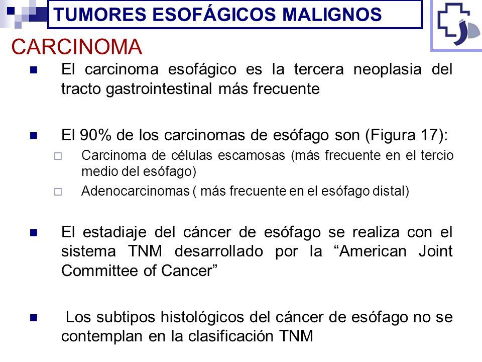 CARCINOMA TUMORES ESOFÁGICOS MALIGNOS