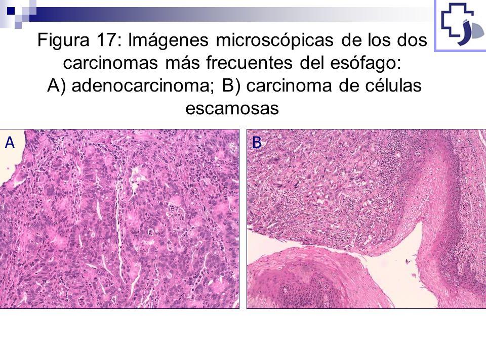 Figura 17: Imágenes microscópicas de los dos carcinomas más frecuentes del esófago: A) adenocarcinoma; B) carcinoma de células escamosas