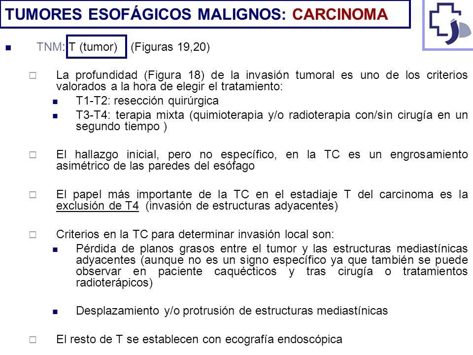 TUMORES ESOFÁGICOS MALIGNOS: CARCINOMA