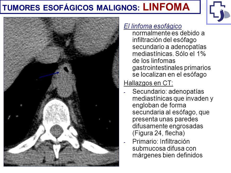TUMORES ESOFÁGICOS MALIGNOS: LINFOMA
