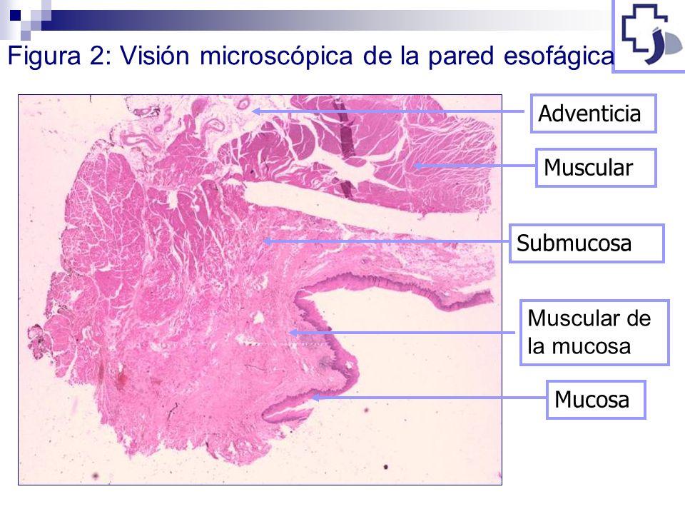 Figura 2: Visión microscópica de la pared esofágica