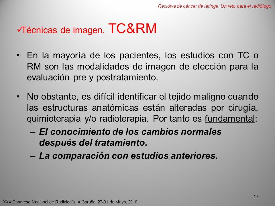 Técnicas de imagen. TC&RM