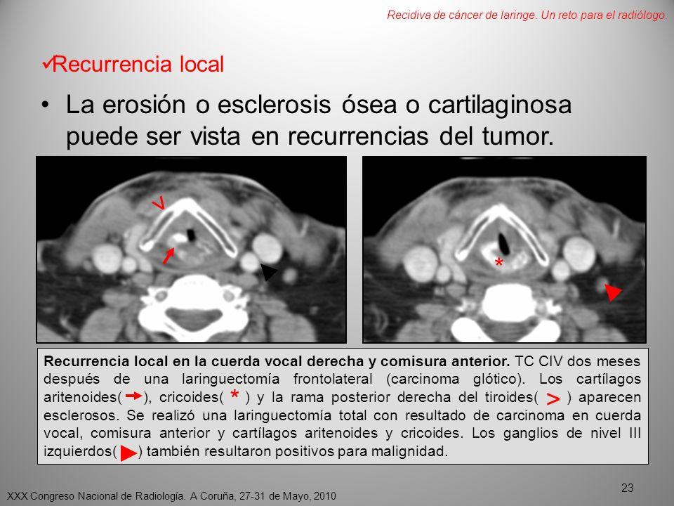 Recidiva de cáncer de laringe. Un reto para el radiólogo.