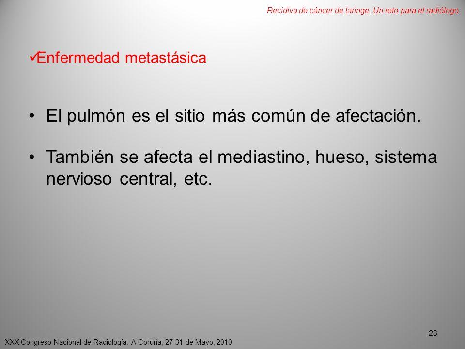 Enfermedad metastásica