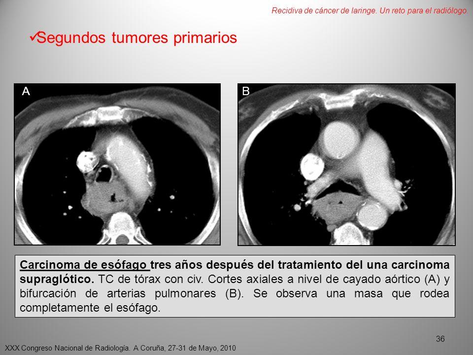 Segundos tumores primarios