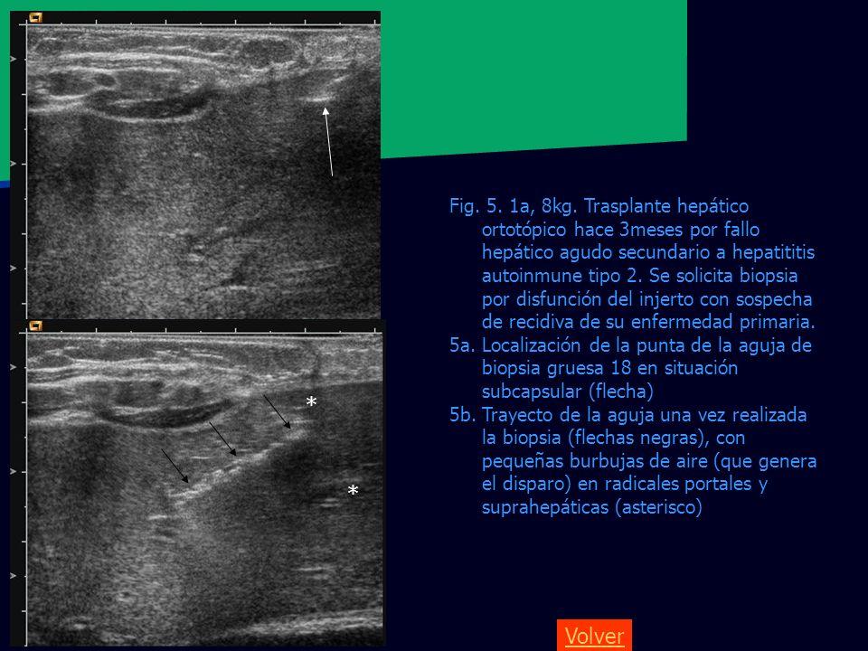 Fig. 5. 1a, 8kg. Trasplante hepático ortotópico hace 3meses por fallo hepático agudo secundario a hepatititis autoinmune tipo 2. Se solicita biopsia por disfunción del injerto con sospecha de recidiva de su enfermedad primaria.