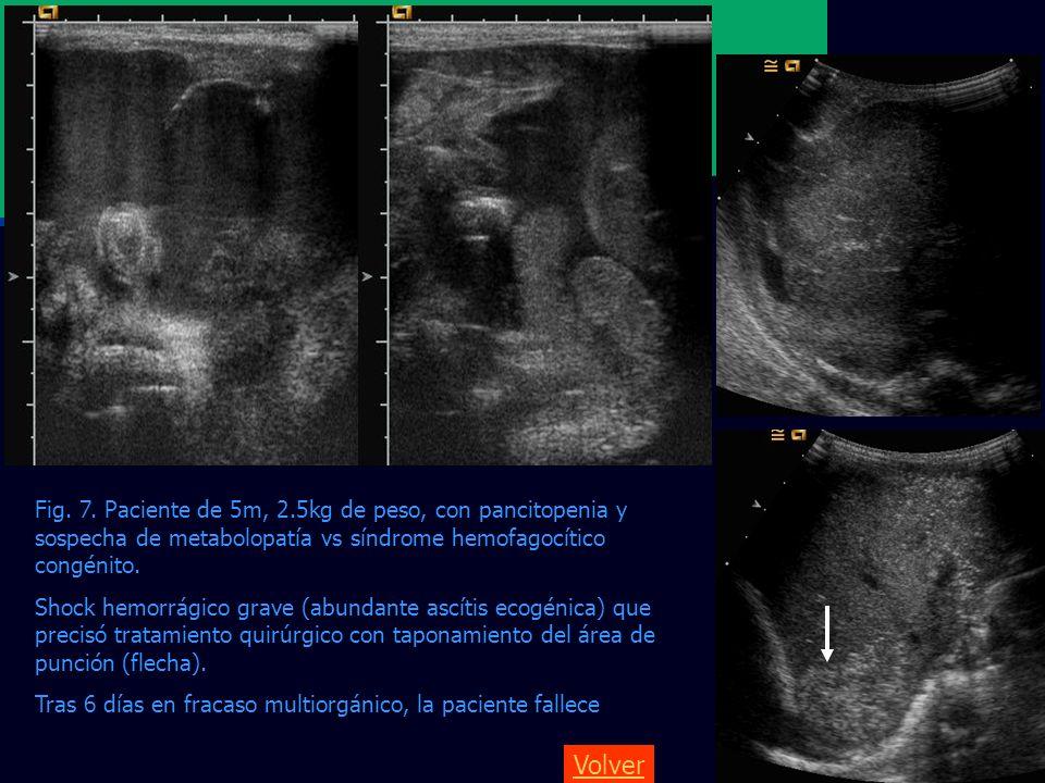 Fig. 7. Paciente de 5m, 2.5kg de peso, con pancitopenia y sospecha de metabolopatía vs síndrome hemofagocítico congénito.