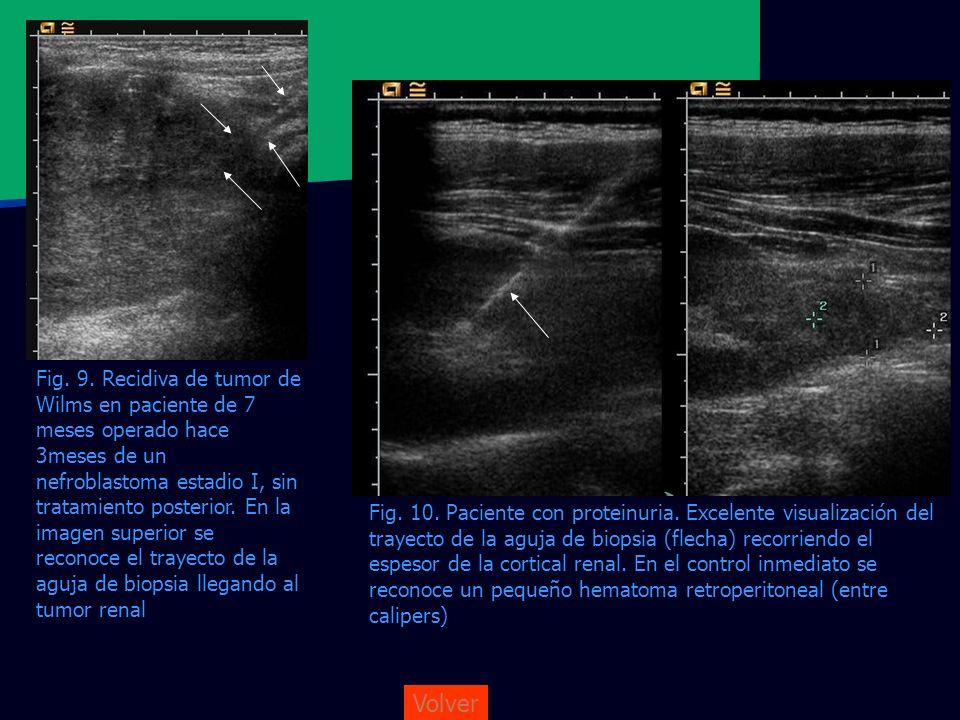 Fig. 9. Recidiva de tumor de Wilms en paciente de 7 meses operado hace 3meses de un nefroblastoma estadio I, sin tratamiento posterior. En la imagen superior se reconoce el trayecto de la aguja de biopsia llegando al tumor renal