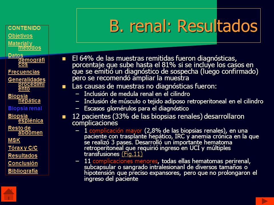 B. renal: ResultadosCONTENIDO. Objetivos. Material y métodos. Datos demográficos. Frecuencias. Generalidades procedimiento.