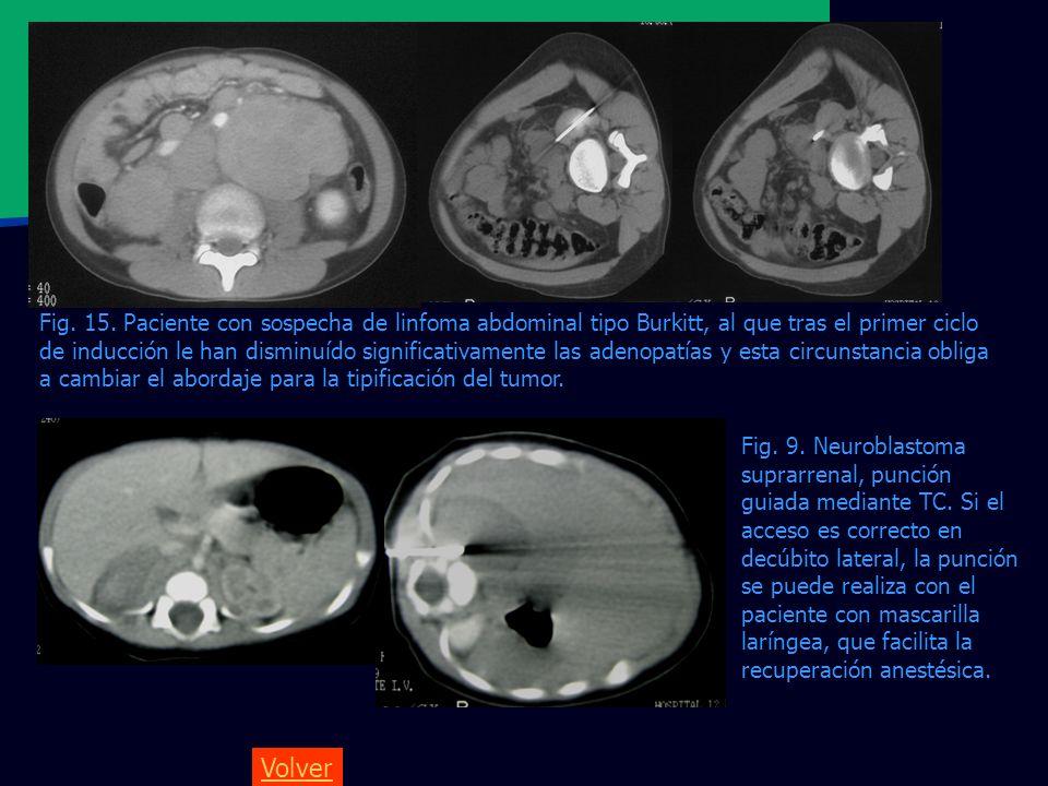 Fig. 15. Paciente con sospecha de linfoma abdominal tipo Burkitt, al que tras el primer ciclo de inducción le han disminuído significativamente las adenopatías y esta circunstancia obliga a cambiar el abordaje para la tipificación del tumor.