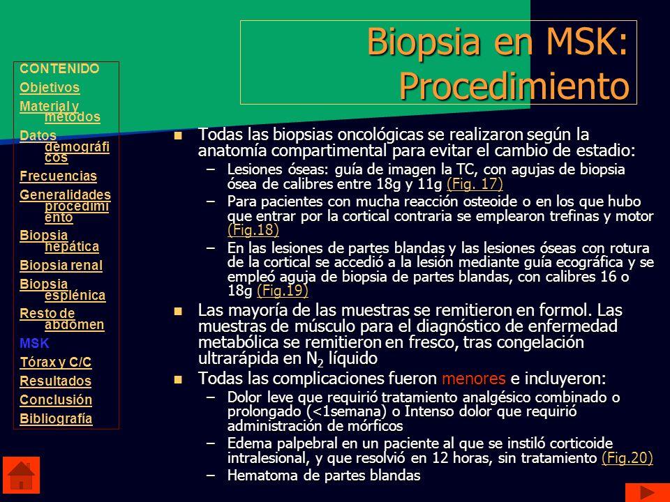 Biopsia en MSK: Procedimiento