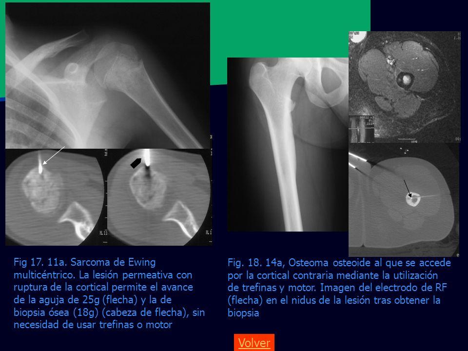 Fig. 18. 14a, Osteoma osteoide al que se accede por la cortical contraria mediante la utilización de trefinas y motor. Imagen del electrodo de RF (flecha) en el nidus de la lesión tras obtener la biopsia