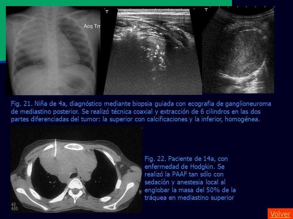 Fig. 21. Niña de 4a, diagnóstico mediante biopsia guiada con ecografia de ganglioneuroma de mediastino posterior. Se realizó técnica coaxial y extracción de 6 cilindros en las dos partes diferenciadas del tumor: la superior con calcificaciones y la inferior, homogénea.