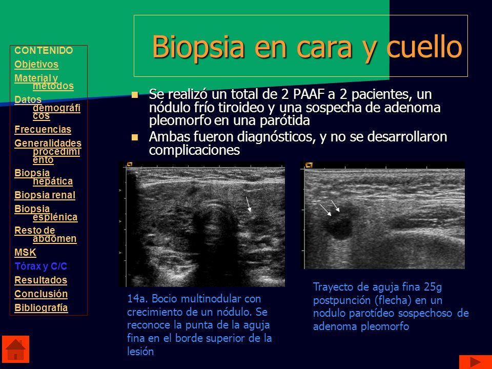 Biopsia en cara y cuello