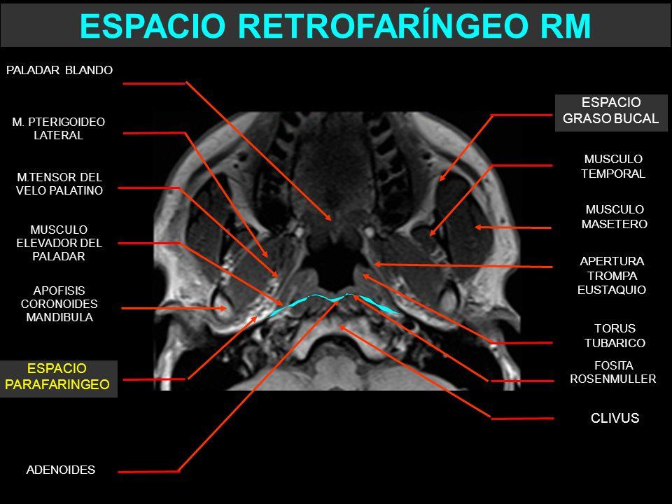 ESPACIO RETROFARÍNGEO RM