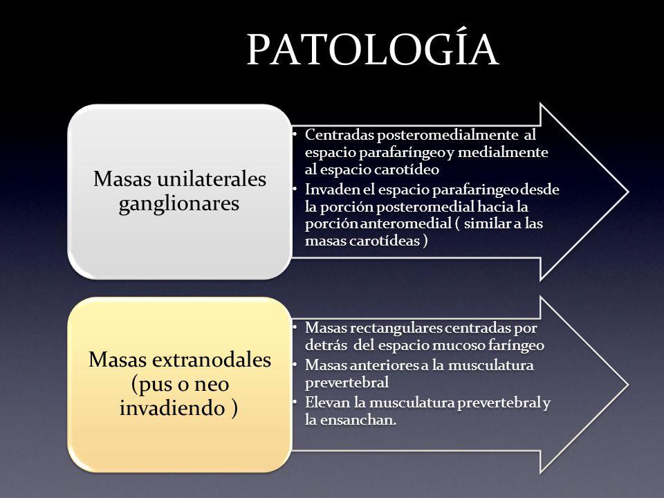 PATOLOGÍA Masas extranodales (pus o neo invadiendo )