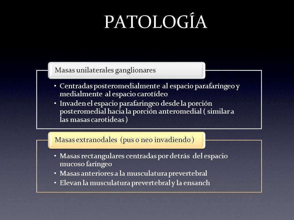 PATOLOGÍA Masas unilaterales ganglionares