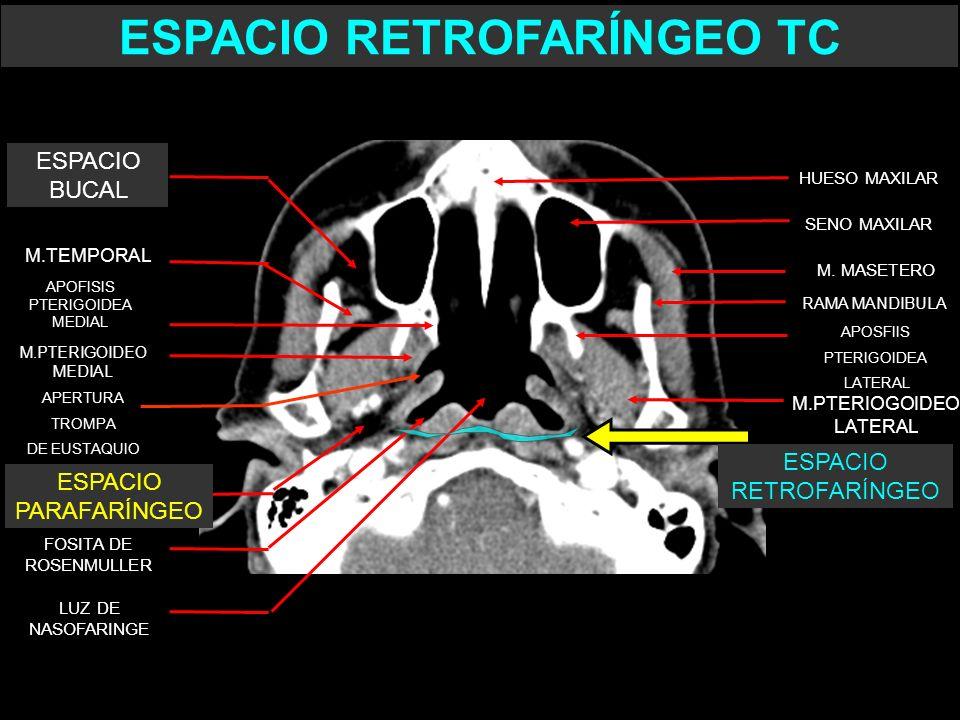 ESPACIO RETROFARÍNGEO TC