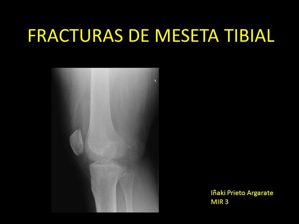 FRACTURAS DE MESETA TIBIAL