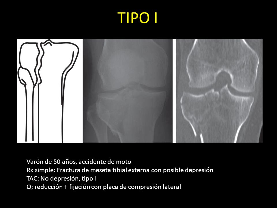 TIPO I Varón de 50 años, accidente de moto