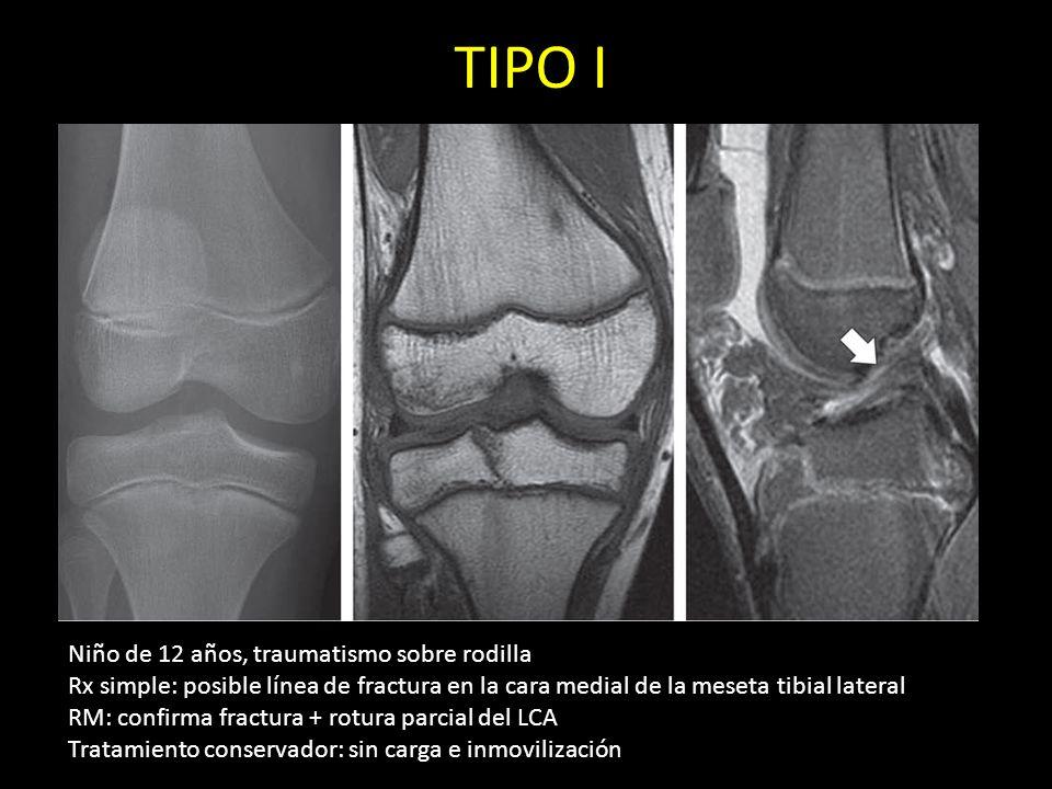 TIPO I Niño de 12 años, traumatismo sobre rodilla