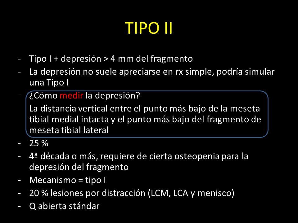 TIPO II Tipo I + depresión > 4 mm del fragmento