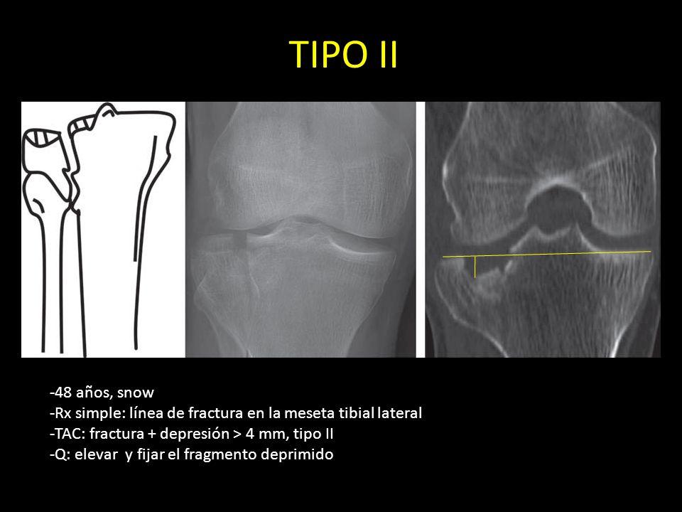 TIPO II-48 años, snow. -Rx simple: línea de fractura en la meseta tibial lateral. -TAC: fractura + depresión > 4 mm, tipo II.