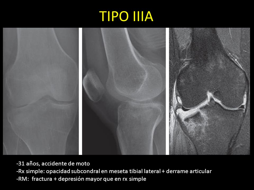 TIPO IIIA -31 años, accidente de moto