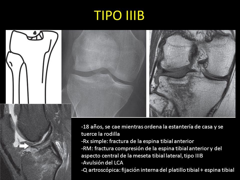 TIPO IIIB-18 años, se cae mientras ordena la estantería de casa y se tuerce la rodilla. -Rx simple: fractura de la espina tibial anterior.