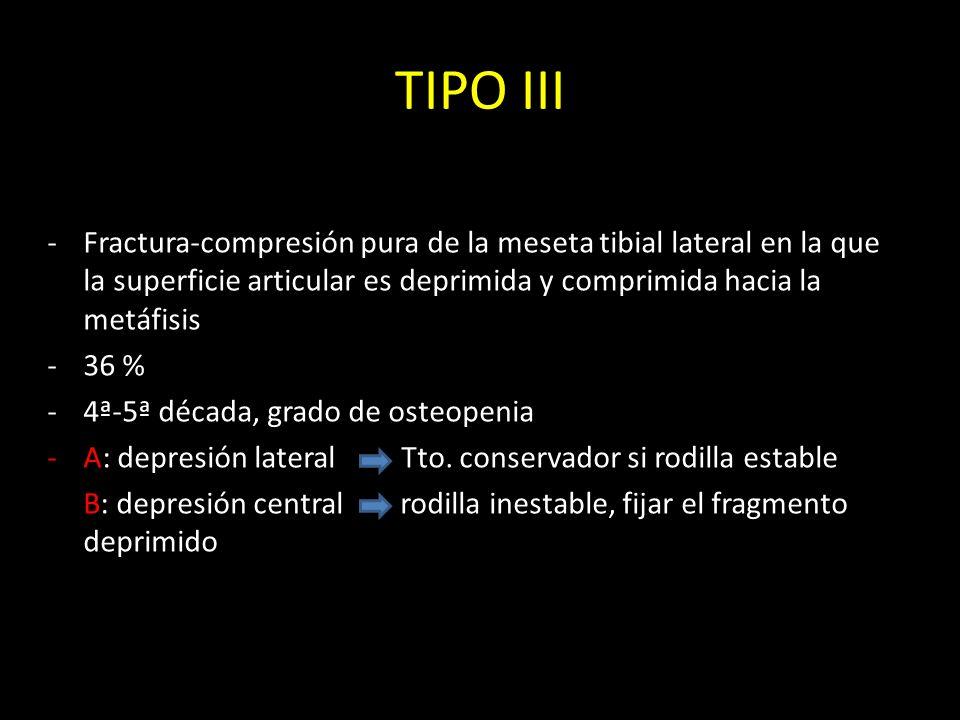 TIPO IIIFractura-compresión pura de la meseta tibial lateral en la que la superficie articular es deprimida y comprimida hacia la metáfisis.