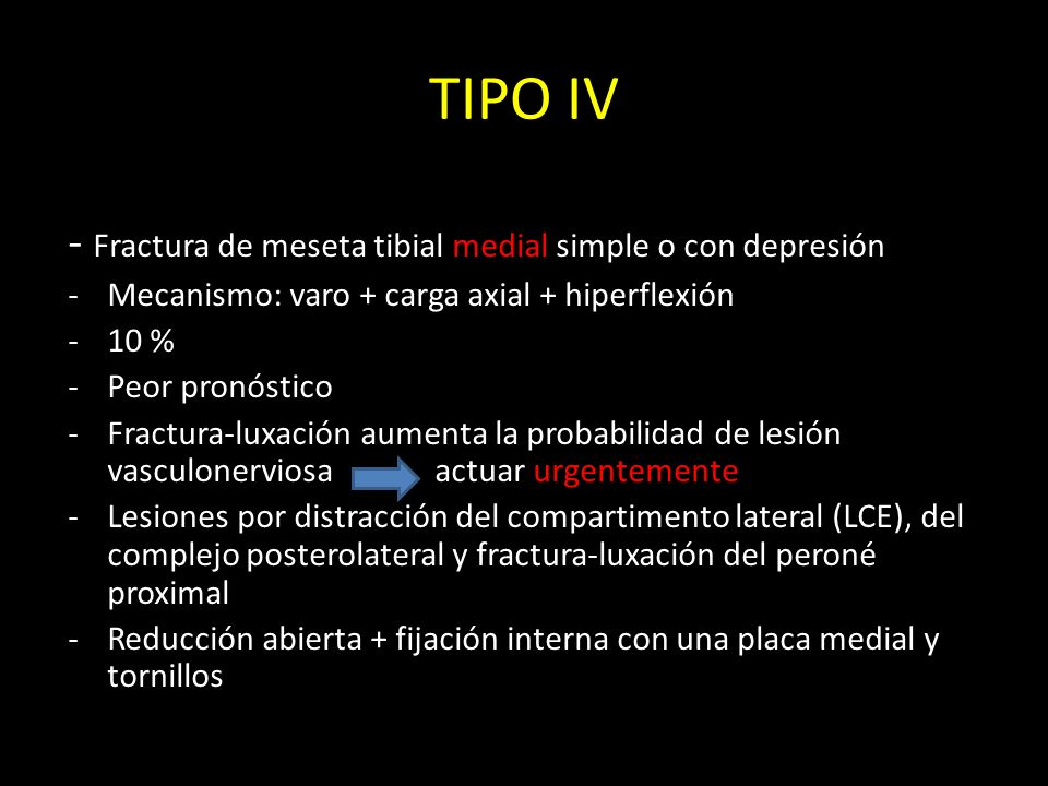 TIPO IV - Fractura de meseta tibial medial simple o con depresión