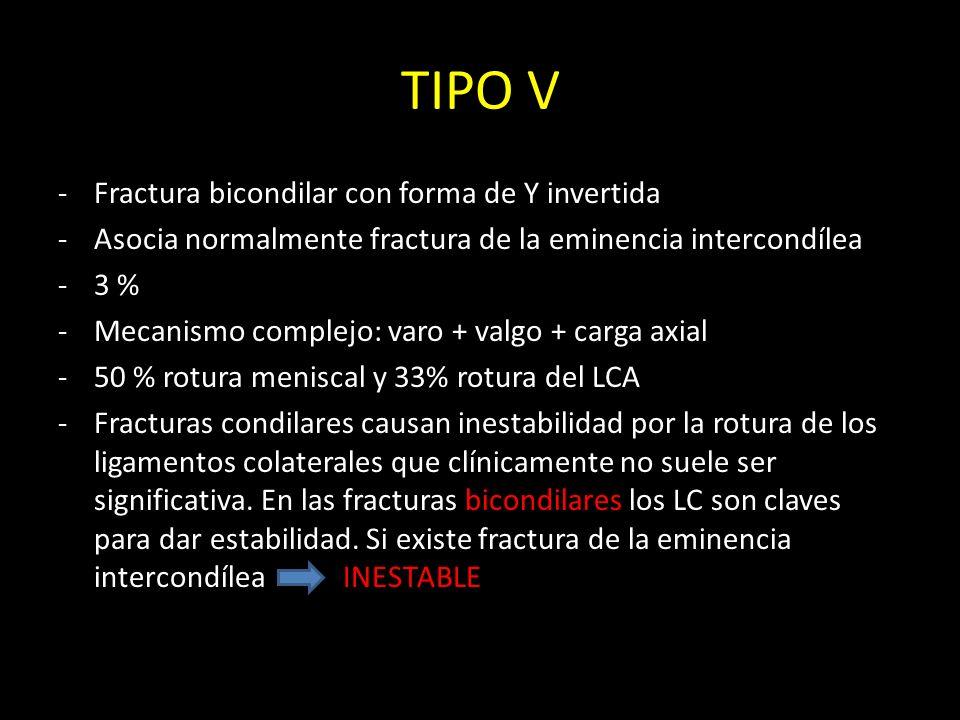 TIPO V Fractura bicondilar con forma de Y invertida