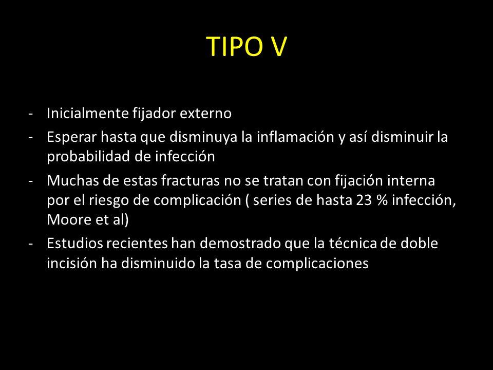 TIPO V Inicialmente fijador externo