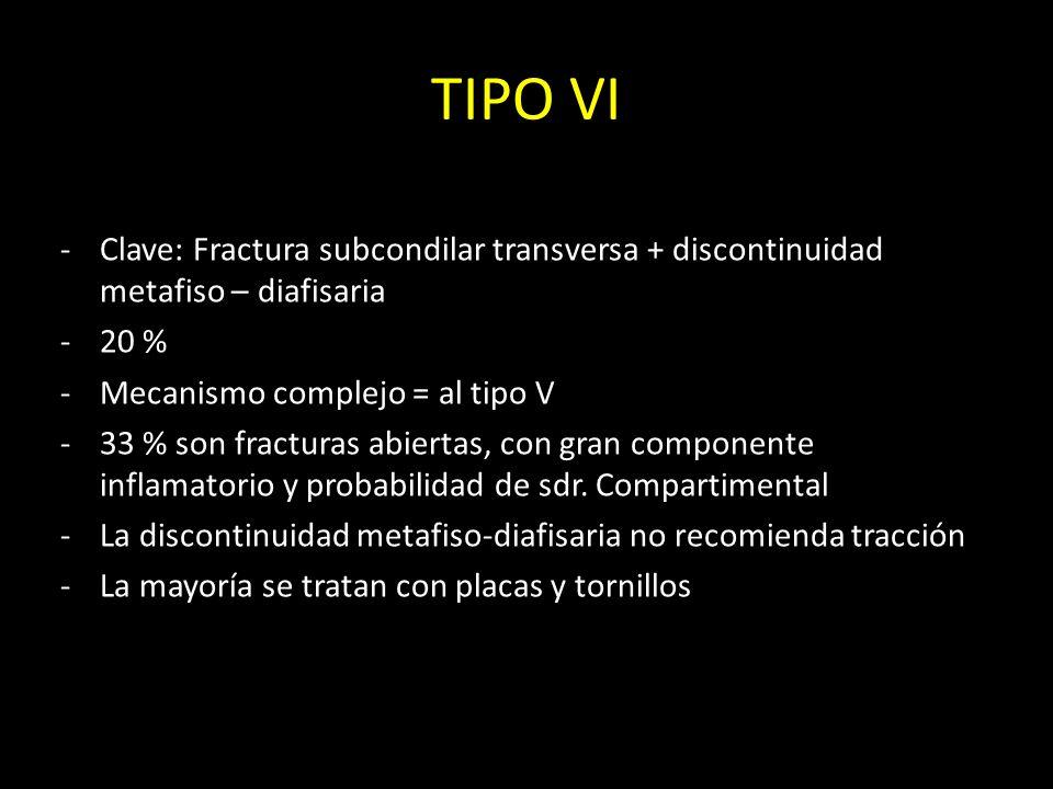 TIPO VI Clave: Fractura subcondilar transversa + discontinuidad metafiso – diafisaria. 20 % Mecanismo complejo = al tipo V.