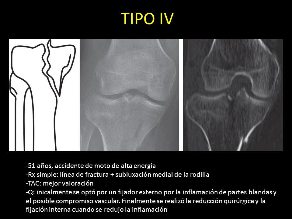 TIPO IV -51 años, accidente de moto de alta energía