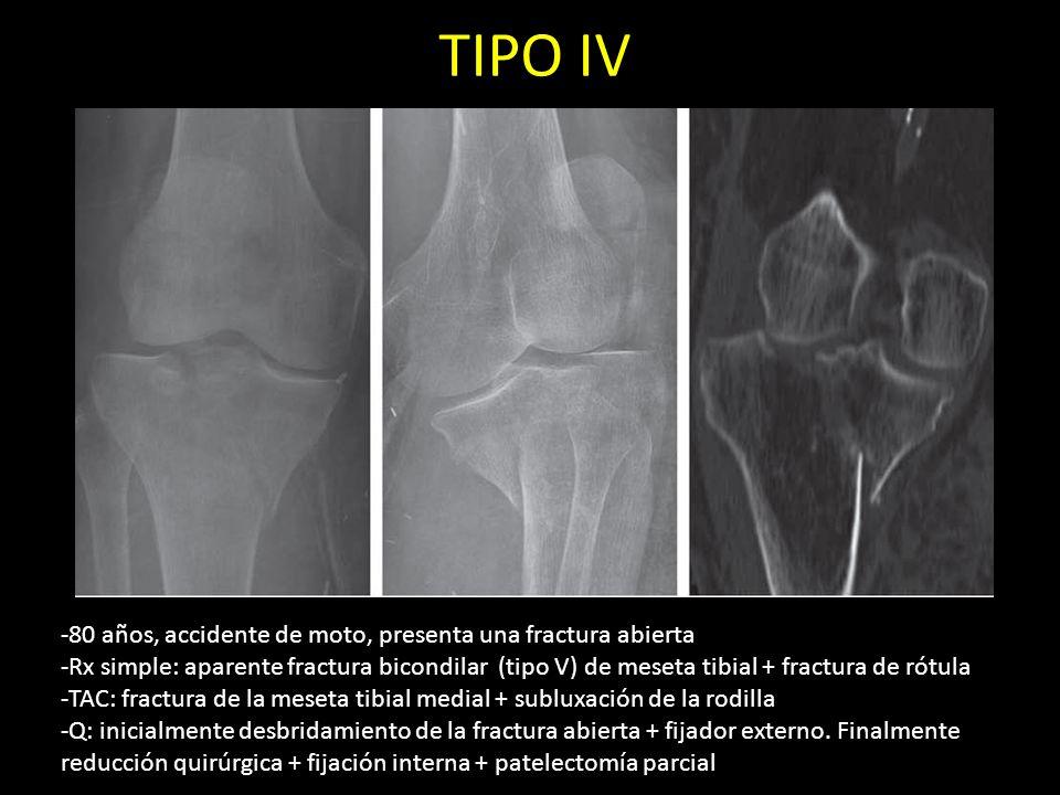 TIPO IV 80 años, accidente de moto, presenta una fractura abierta