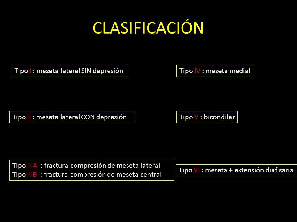 CLASIFICACIÓN Tipo I : meseta lateral SIN depresión