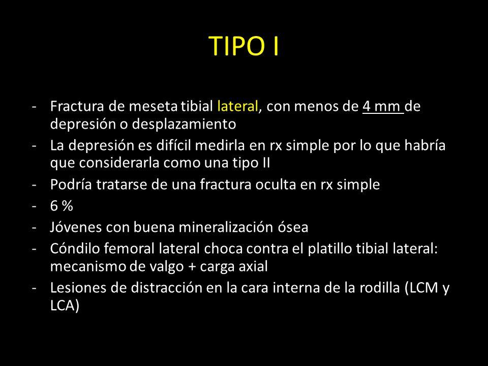 TIPO I Fractura de meseta tibial lateral, con menos de 4 mm de depresión o desplazamiento.
