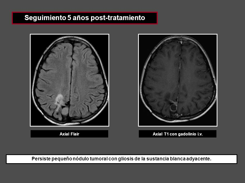 Seguimiento 5 años post-tratamiento Axial T1 con gadolinio i.v.