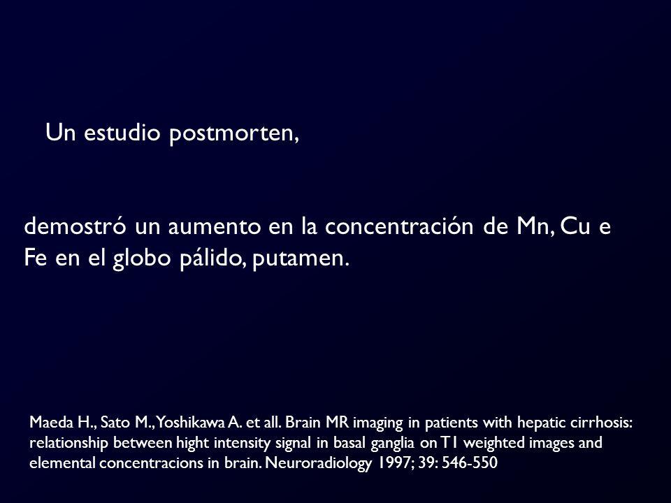 Un estudio postmorten, demostró un aumento en la concentración de Mn, Cu e Fe en el globo pálido, putamen.