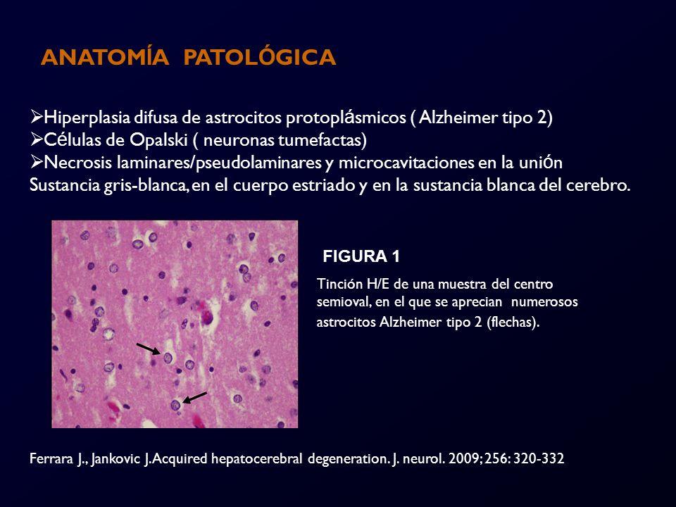 ANATOMÍA PATOLÓGICA Hiperplasia difusa de astrocitos protoplásmicos ( Alzheimer tipo 2) Células de Opalski ( neuronas tumefactas)