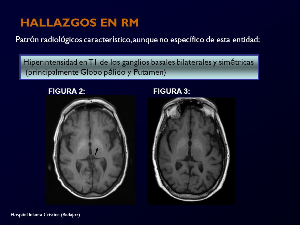 HALLAZGOS EN RM Patrón radiológicos característico, aunque no específico de esta entidad: