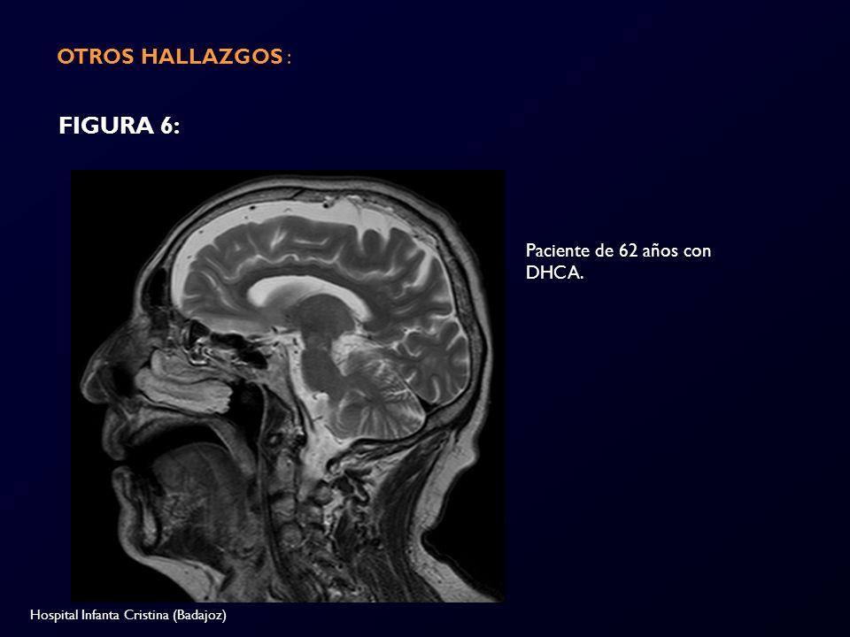 FIGURA 6: OTROS HALLAZGOS : Paciente de 62 años con DHCA.