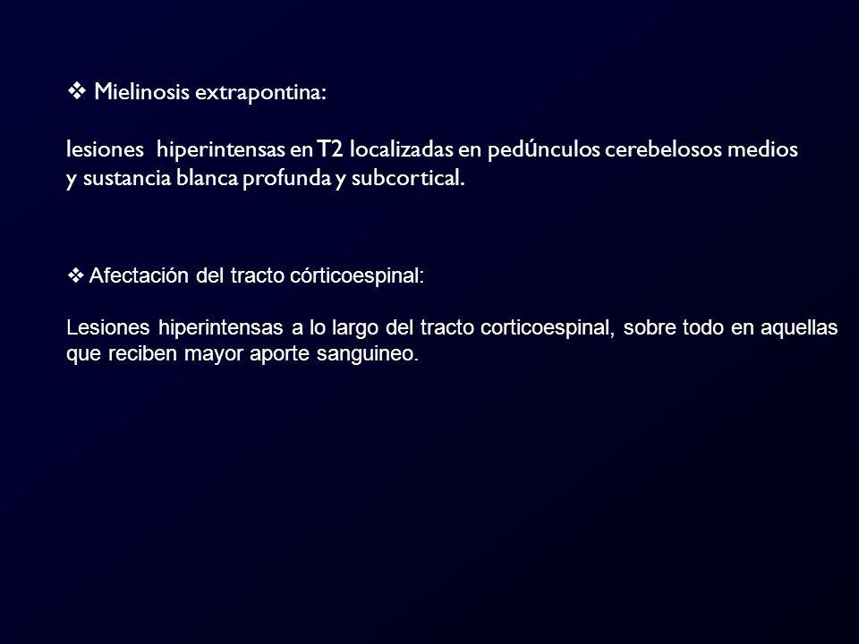 Mielinosis extrapontina: