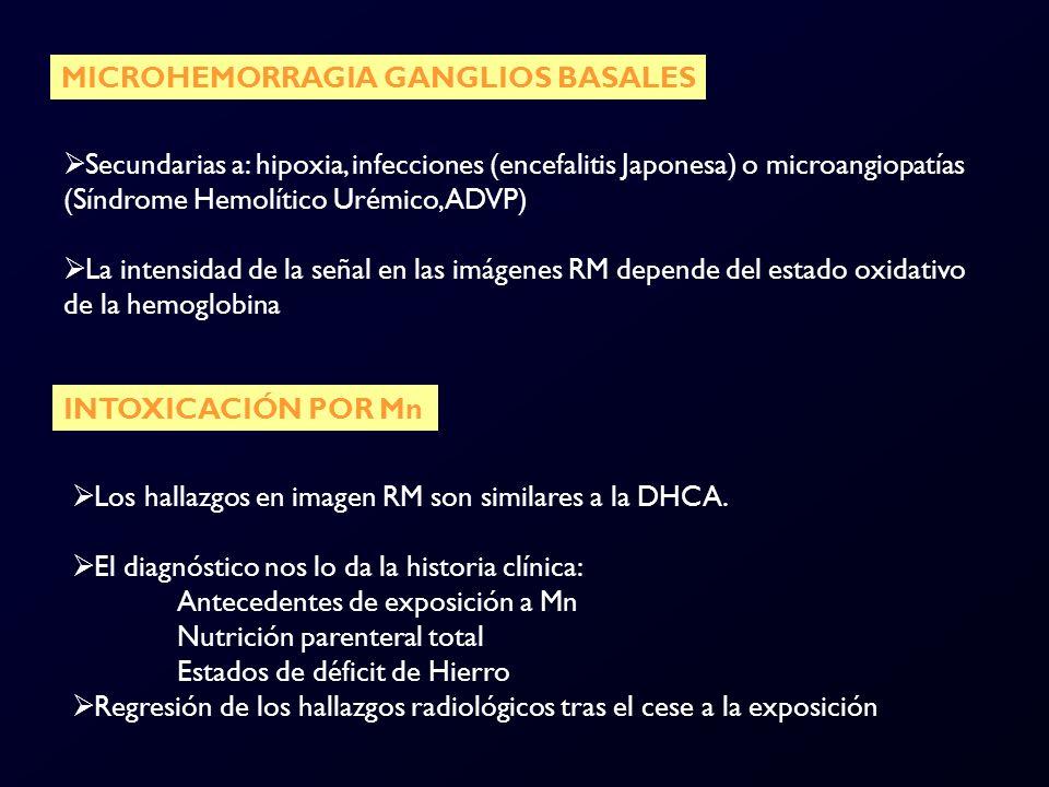 MICROHEMORRAGIA GANGLIOS BASALES