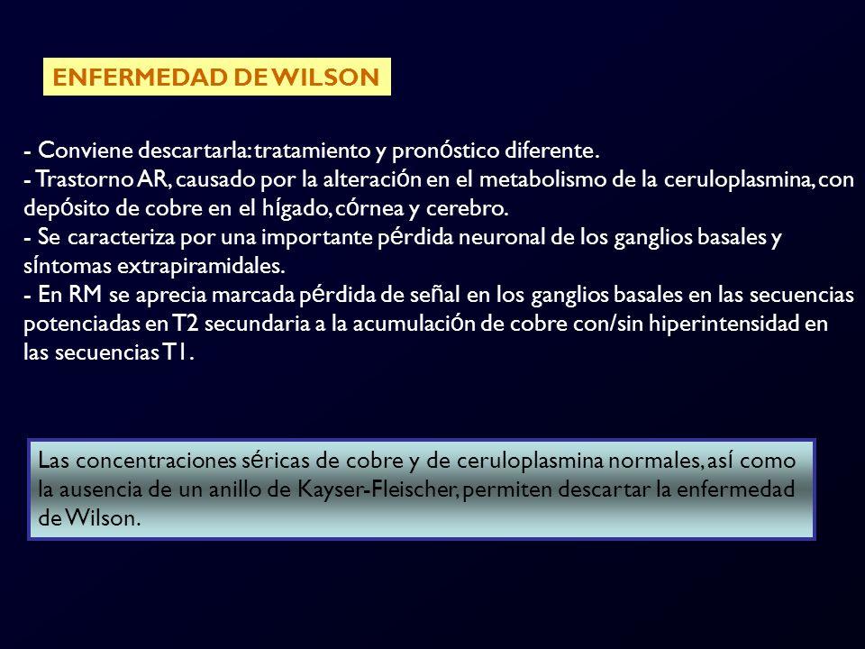 ENFERMEDAD DE WILSON Conviene descartarla: tratamiento y pronóstico diferente.