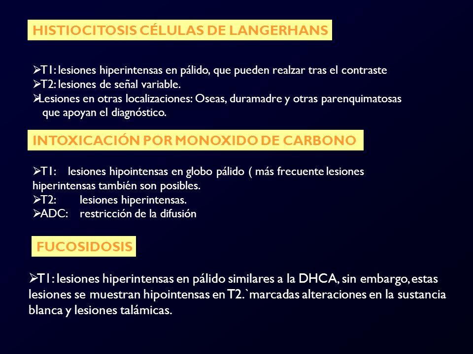 HISTIOCITOSIS CÉLULAS DE LANGERHANS