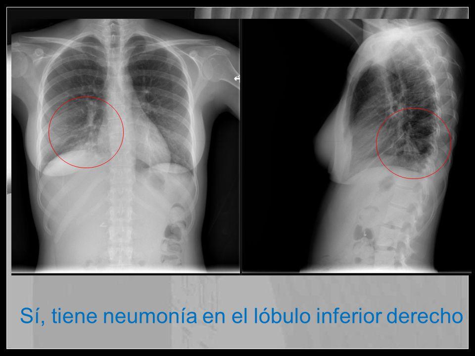 Sí, tiene neumonía en el lóbulo inferior derecho