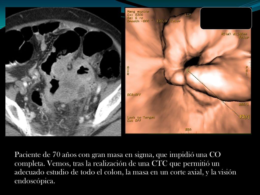 Paciente de 70 años con gran masa en sigma, que impidió una CO completa.