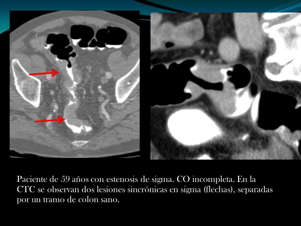Paciente de 59 años con estenosis de sigma. CO incompleta